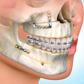 Cirugía Ortogánica