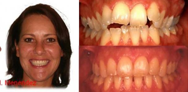 Granada Ortodoncia Lingual