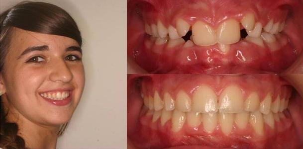 ortodoncia granada_2