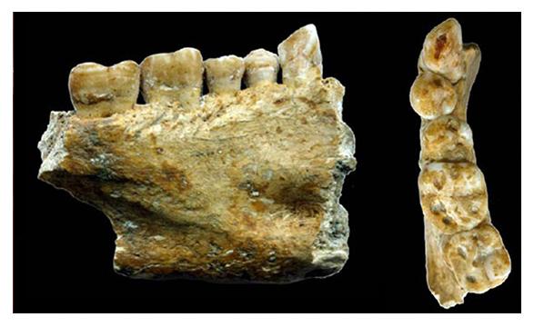 ortodoncia invisible granada