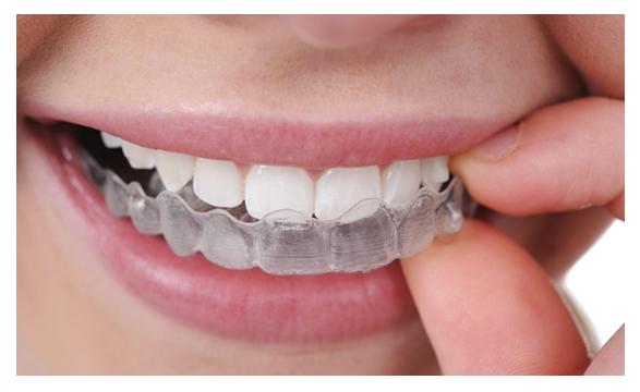 ortodoncia granada