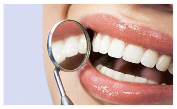 Ortodoncia_paso a paso