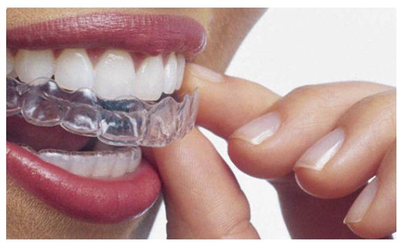 Ortodoncia invisible granada frente a Brackets