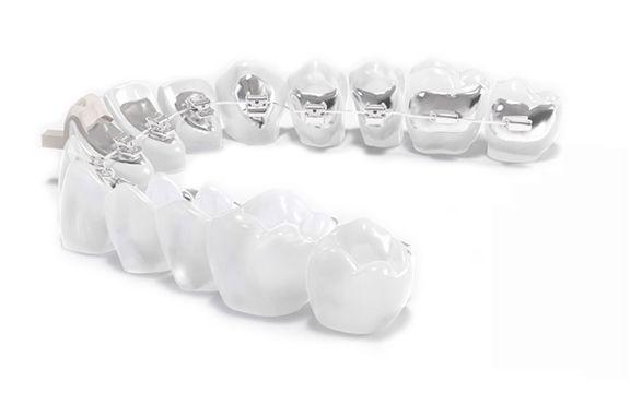 ortodoncia-invisible-granada copia
