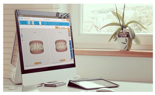 ortodoncia_invisible-teen-1