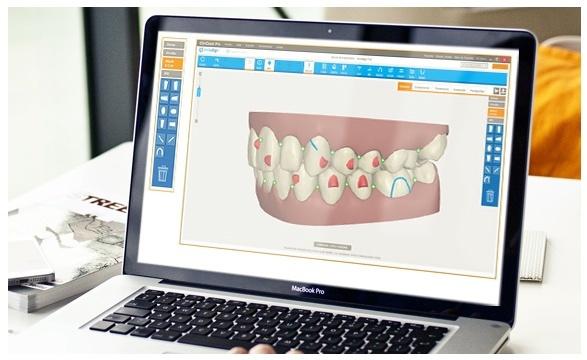 ortodoncia-invisible-granada-invisalign g6