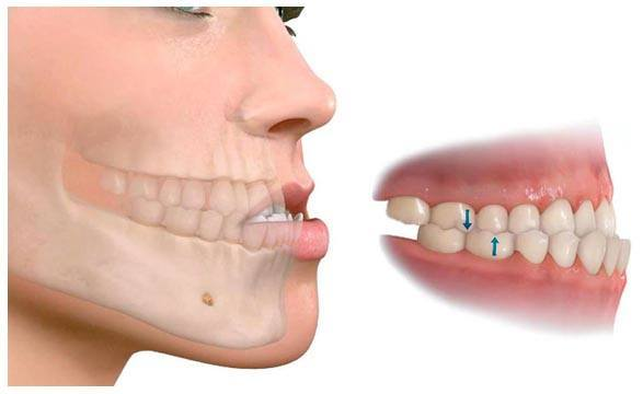 ortodoncia-granada-demtal-clinica-1