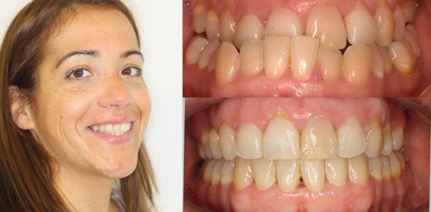 ortodoncia-granada_lingual
