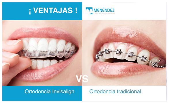 ventajas de ortodoncia-invisible en granada