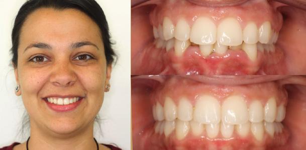 ortodoncia-granada_lingual1